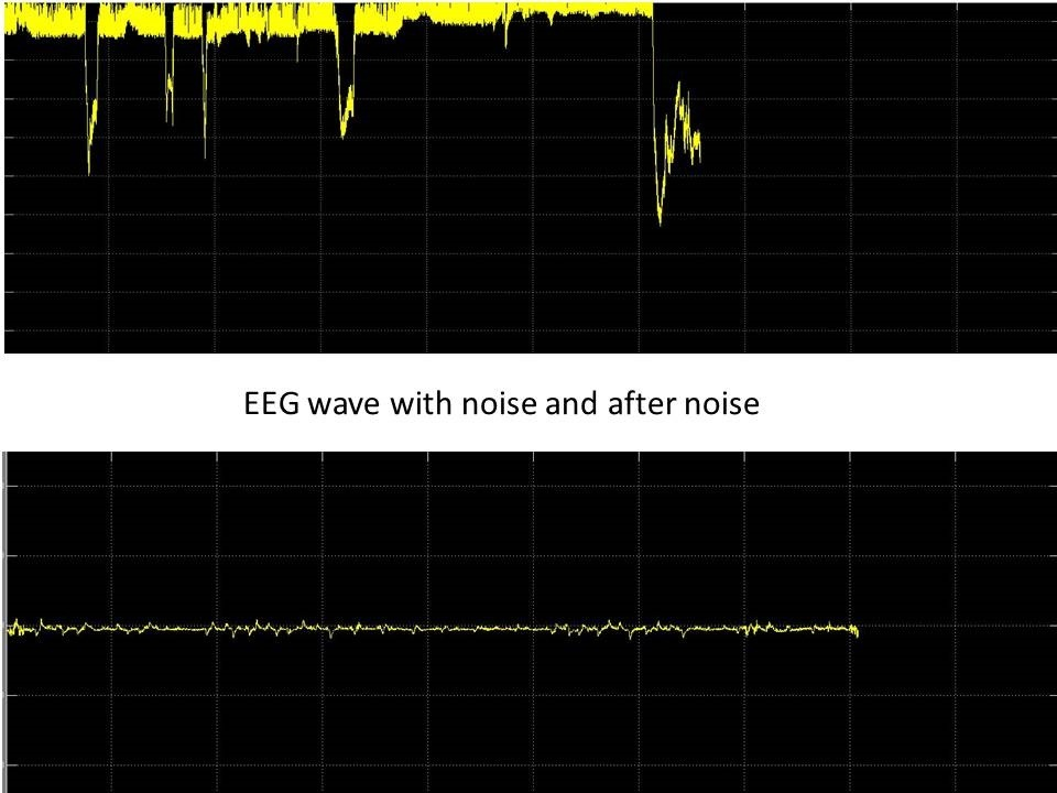 eeg wave real time results